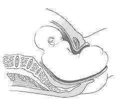 accouchement par le siege 6 1 présentation du siège essential obstetric and newborn care