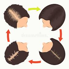 thinning hair in women on top of head female pattern hair loss stages stock vector illustration of