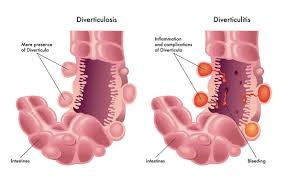 the diverticulitis diet low residue diet for a healthier gut