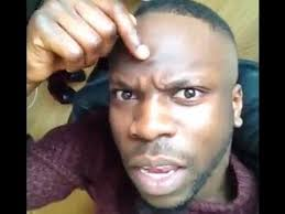 Receding Hairline Meme - one man s tribute to receding hairline barbinc news