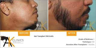 hair transplant costs in the philippines ak hair clinics hair transplant results hairsite com