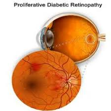 have you noticed the early signs of diabetic retinopathy have you