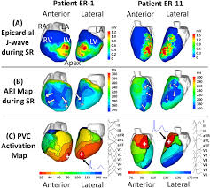 Nih Campus Map The Electrophysiological Substrate Of Early Repolarization