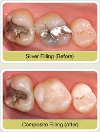 light cure composite filling what are composite fillings west nyack dentists explains