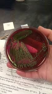 26 best bacteriology practical 1 images on pinterest