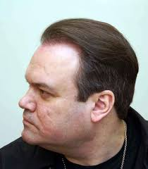 paddy mcguinness hair transplant cbb s barry from eastenders aka shaun williamson undergoes hair