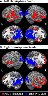 differential connectivity of perirhinal and parahippocampal