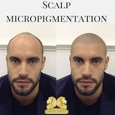 9 best scalp micropigmention images on pinterest photo galleries