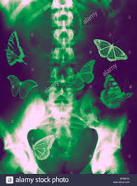 concept butterflies in the stomach x of a human abdomen