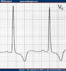Strain Pattern Ecg Meaning | ecgs for ems lvh strain ischemia or what