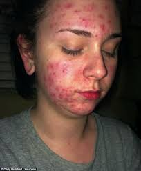 youtube user carly humbert reveals how her iud gave her acne and