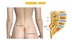 pilonidal cyst location image gallery natal cleft