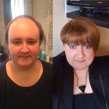 women hair cut to cover bald spot on top of head woman tells of brave battle with hair loss which involves gluing
