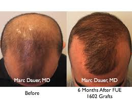 hair transplant month by month pictures fue hair transplant at 6 months hair transplant los angeles