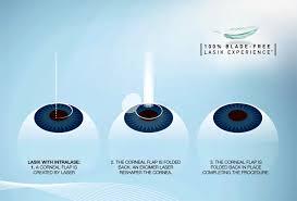 lade laser lasik eye surgery advanced vision surgery
