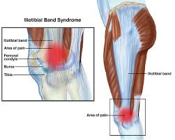Picture Of Human Knee Muscles Iliotibial Band Syndrome Itbs Or