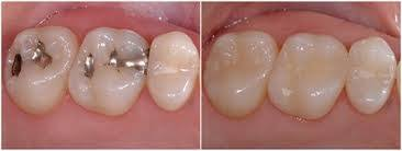 light cure composite filling kenneth l andow dds pc composite fillings in centennial