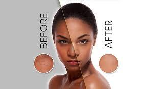 best otc hair bleach best bleaching cream for black skin think africa
