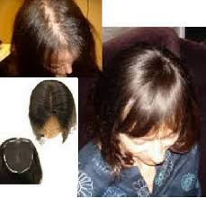 wigs for women with thinning hair human hairpieces for women with thin thinning hair