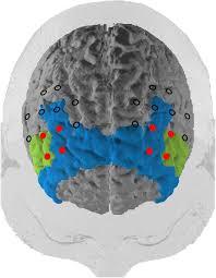 frontiers near infrared spectroscopy based frontal lobe