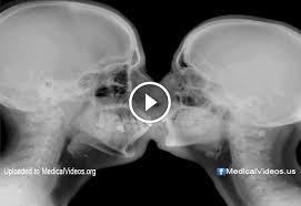 Radiology Anatomy Medical Radiology Anatomy Of Kissing Inside Mri Doktorz