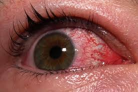 eye pain from light medical pictures info pink eye