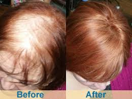hair weaves for thinning hair extensions for thin fine hair dallas fort worth dfw tx