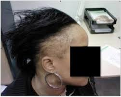 womans hair thinning on sides traction alopecia causes and treatment dermhair clinic los angeles