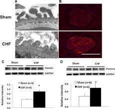 urinary proteolytic activation of renal epithelial na channels in