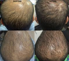 hairstyle injections for hair regrowth best hair transplant