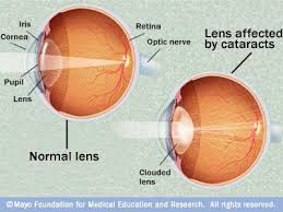Can Cataracts Cause Blindness 48 Best Cataracts Images On Pinterest Optometry Eye Facts And