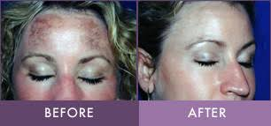 blu light therapy for acne photodynamic therapy treatment in lititz randalicentre com