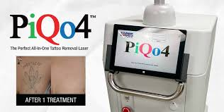full service laser tattoo removal clinic eraditatt