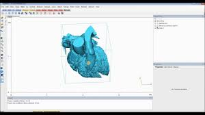 3d Medical Software Tutorial Mimics Innovation Suite Create A Heart Model For 3d