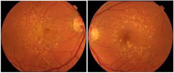 Aus der Klinik für Augenheilkunde der Universität zu Lübeck Direktor