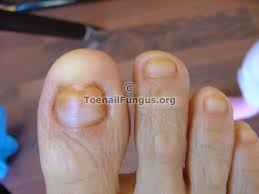 pictures and photos sent in by readers u2013 toenail fungus