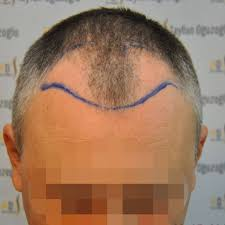 images of hair hair transplant before after photos gethair