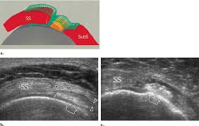 Subscapularis And Supraspinatus Rotator Cuff Interval A Schematic Illustrates The Relationship