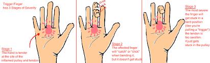 trigger finger bone