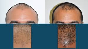 hair transplant surgery for women in new york city david