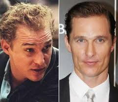 hair plugs for men celebrities with hair transplants list of famous men with plugs