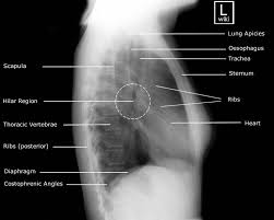 Radiology Of Thorax 71 Best Radiographic Anatomy Images On Pinterest Rad Tech
