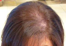 womans hair thinning on sides hair loss causes treatments toppikcanada ca