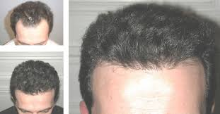 neograft recovery timeline neograft hair restoration spalding plastic surgery