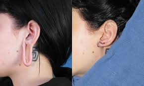 spacer earrings torn earlobe repair san diego ca