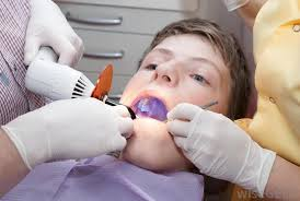 what is a dental curing light used for what is uv light with pictures