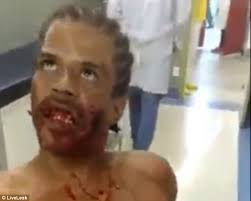Possessed By Paul James Cold And Blind Wounded Brazilian Appears To Be U0027possessed By The Devil U0027 Daily
