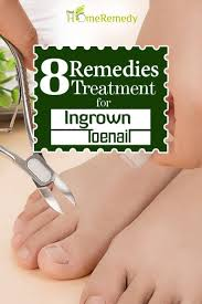 8 outstanding home treatments for ingrown toenail how to treat