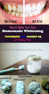get 20 hydrogen peroxide teeth ideas on pinterest without signing
