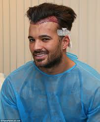 bandage hair shaped pattern baldness towie s michael hassini reveals he s undergone a painstaking hair